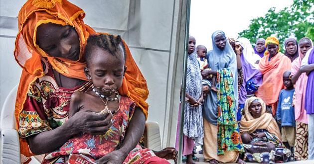 Photo of Malnourished children doubling under Boko Haram terrorism