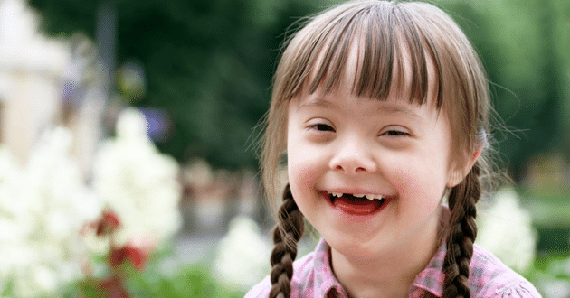 Photo of A smiling child with down syndrome | France says 'non'
